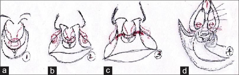 Figure 4: (a) markings over prolabium and Preservation of lip mucosa at lower end of philtrum (b) excision of piece of vermilion on the lateral segments (c) Rotation of vermilion mucosa from lateral segments onto lower end of prolabium (d) Vertical elongation of nose with medial advancement of both medial crura