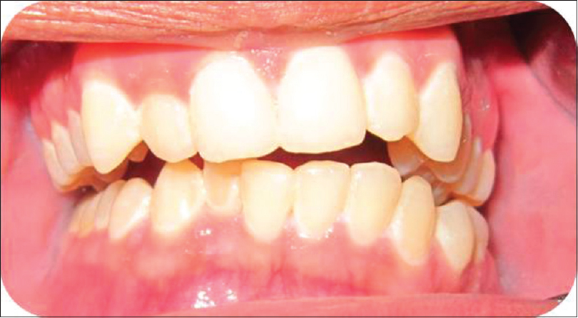 Figure 2: Intraoral view showing premature contact on right with open bite on left side