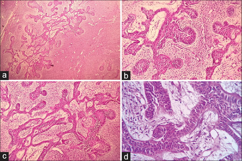 Figure 2: Histopathological examination. (a) Histopathological image showing ameloblastic islands in cellular connective tissue stroma. (b) ×4 view. (c) ×10 view. (d) Tall columnar cells with reversal of polarity resembling primitive odontogenic epithelium