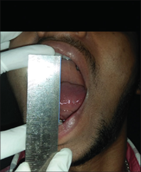 Figure 4: Preoperative: maximum mouth opening