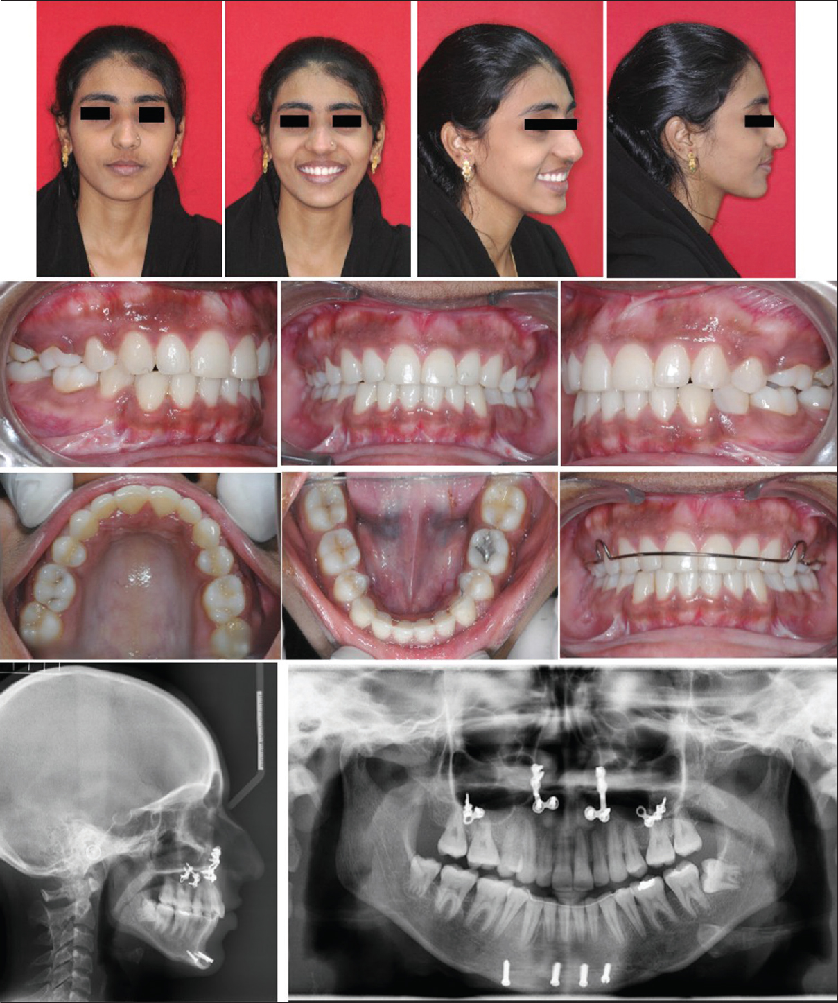 Surgical management of hyperdivergent Class II malocclusion with