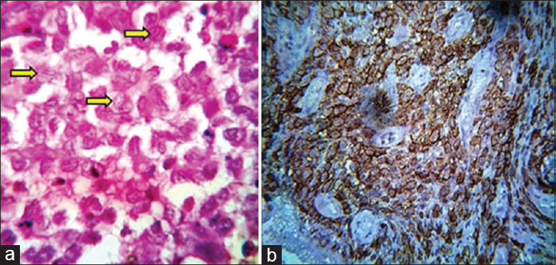 Figure 3:(a) The presence of sheet-like proliferation of Langerhans cells, having coffee bean-shaped appearance, eosinophils, and plasma cells (H and E, ×100). (b) Langerhans cells exhibiting positivity for anti-CD1a (×40)