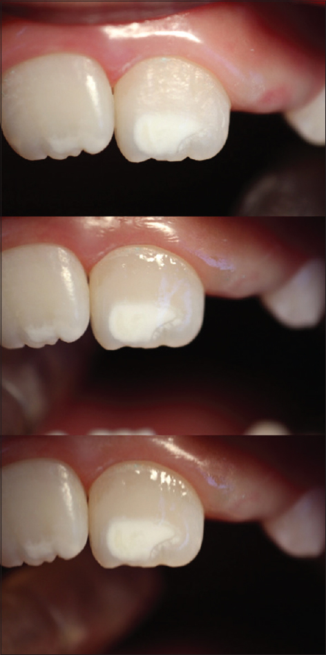 Figure 1: Photograph of before microabrasion (T1), immediately after microabrasion (T2), and 6 months after microabrasion (T3) (top to bottom)