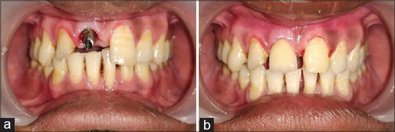 Figure 3: Cementation of definitive crown porcelain fused to the metal crown prosthesis. (a) abutment placed (b) After placement of definitive prosthesis
