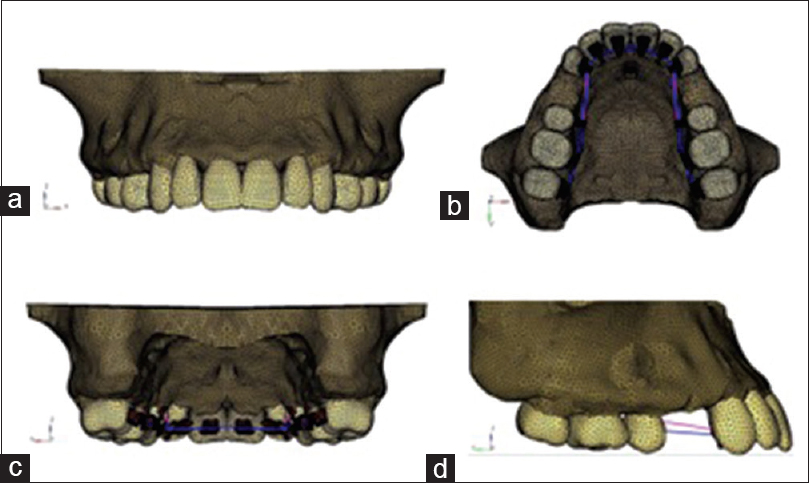 Figure 2: Creation of finite element model of maxilla for lingual appliance. (a) Front view (b) occlusal view, (c) rear view, (d) side view
