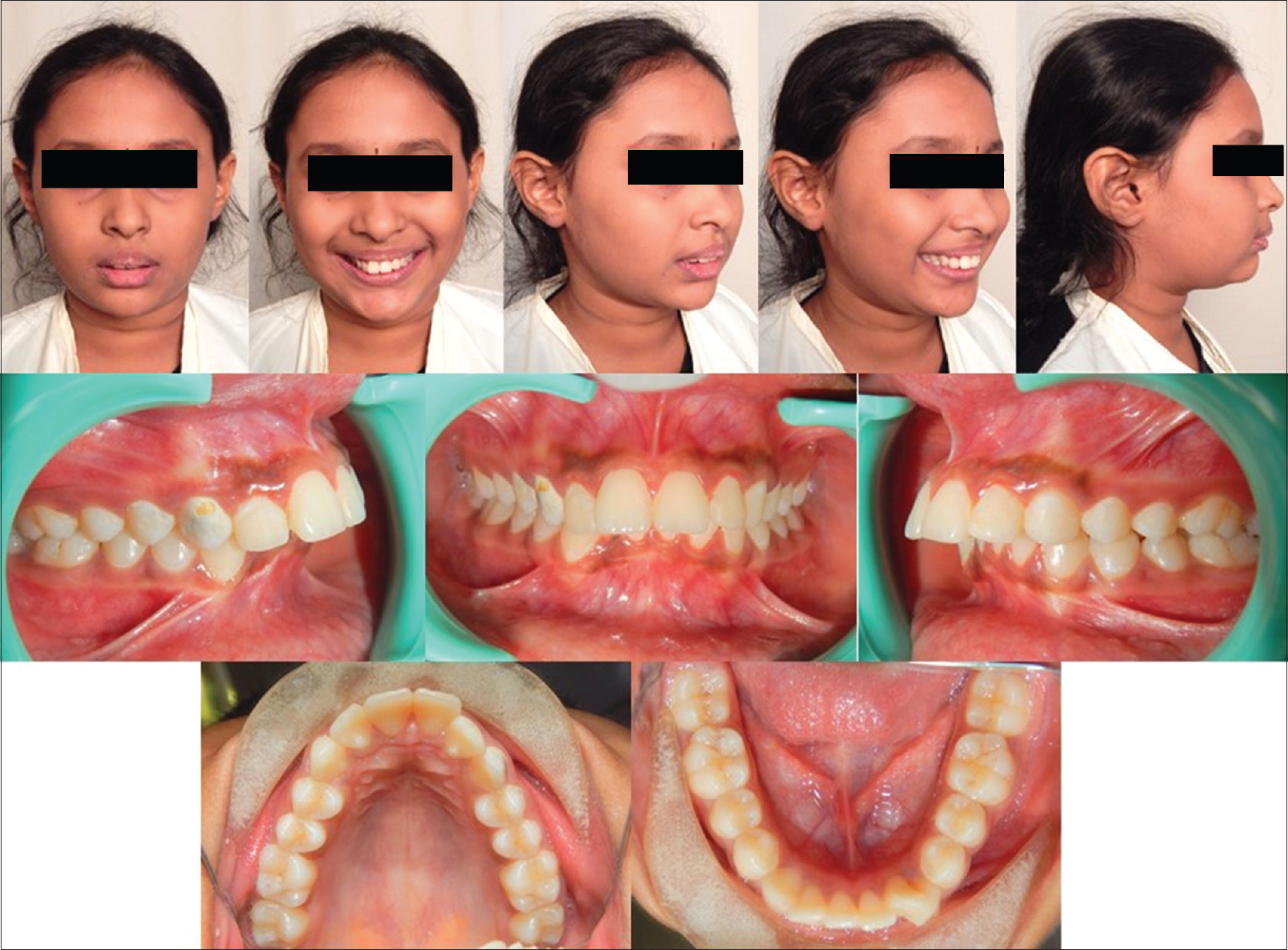 Figure 3: Pretreatment.extra oral and intra oral photographs