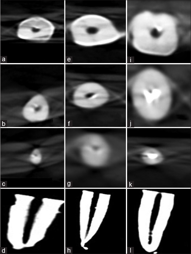 Figure 1: Three-dimensional reconstructed axial view of coronal (a, e, and i), middle (b, f, and j), and apical third (c, g, and k) of root canal and sagittal view of root canal showing remaining gutta-percha or sealer (d, h, and l)