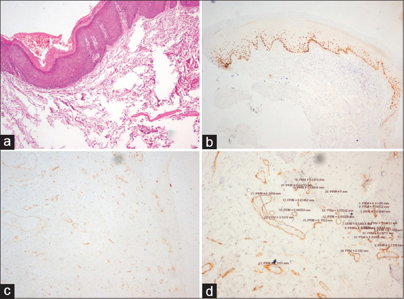 Figure 1: Mild dysplasia: (a) Leukoplakia with mild dysplastic features and hyperkeratinization (H and E stain, ×40); (b) p63 antibody staining 1/3 the epithelial thickness (IHC stain, ×40); (c) hotspot of CD31 stain selected subepithelially (IHC stain, ×100); (d) higher magnification of the ×10 view with morphometric analysis of the vessel walls where mean vessel density is 37 (IHC stain, ×400)